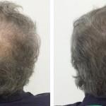 tricopigmentazione1